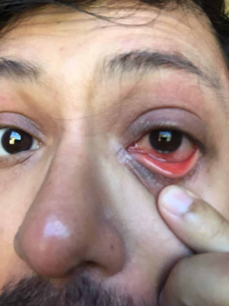 Ranajay infected eye